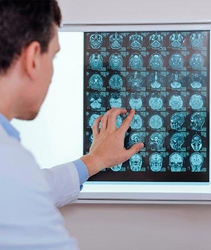 Прием Врача Невролога в Петропавловске-Камчатском - консультация, лечение в Медицинском центре Медитэкс
