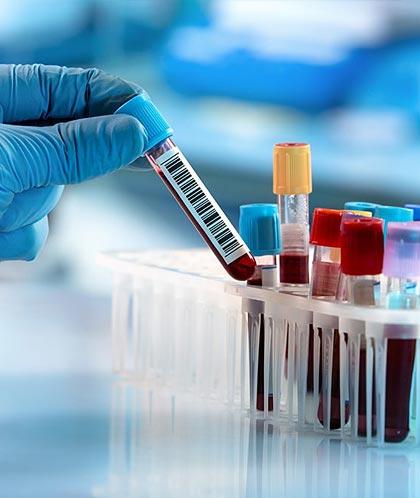 Сдать анализы в диагностической лаборатории медицинского центра Медитекс на Камчатке